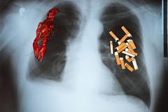 Рак легких станет самой смертоносной формой рака у женщин в странах Европы в 2015 году.