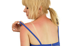 Некоторые пищевые продукты могут помочь уберечься от солнечных ожогов.