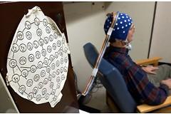 Швейцарские ученые остановили тремор при болезни Паркинсона с помощью миниэлектродов без побочных эффектов. Фото: lenouvelliste.ch